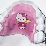 hello kitty retainer pink