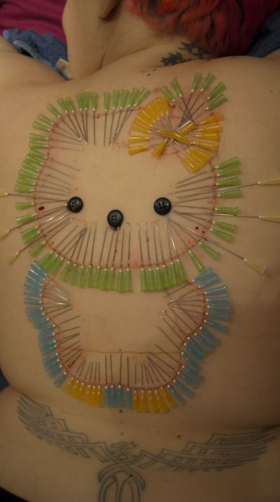 Hello Kitty acupuncture needle artist