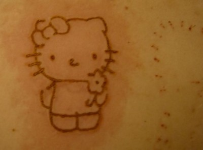 Hello Kitty hot pen brand scar
